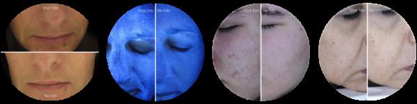 Voor- en Na resultaten PBSerum